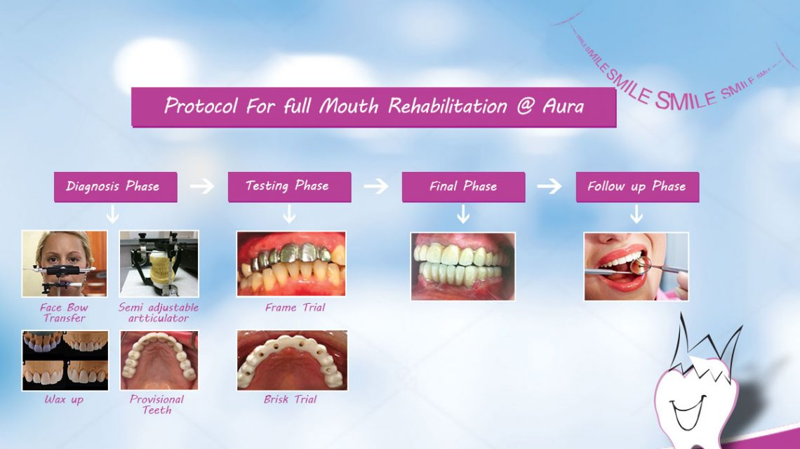 Full Mouth Rehabilitation Treatments