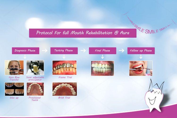 Full Mouth Rehabilitation Treatments