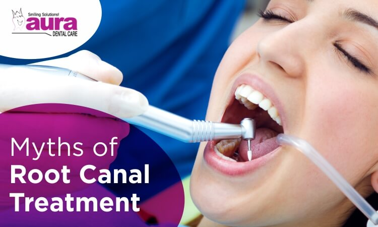 Common Myths of Root Canal Treatment