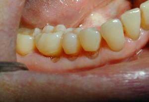 Abfraction Of Teeth - Aura Dental Care