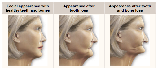 Loss of teeth leads to loss of bone and change in face