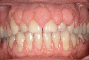 Gum enlargement due to medicine