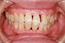Gum Recession - Aura Dental Care