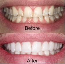 Teeth Color - After Before