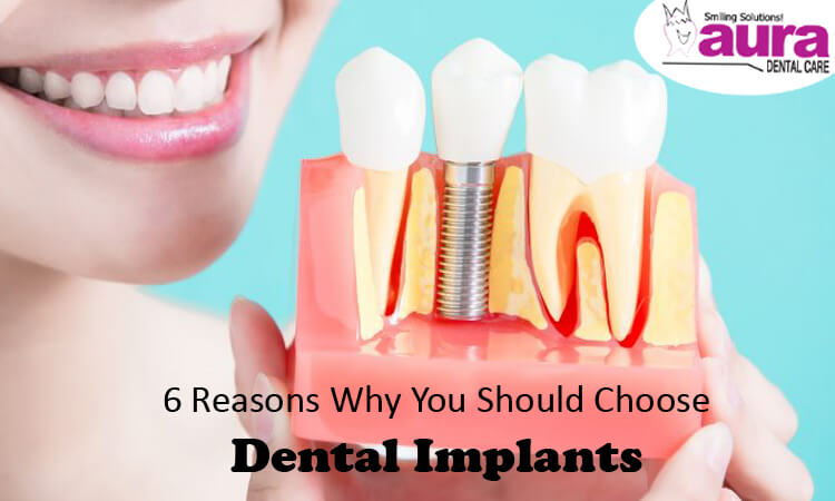 6 Reasons Why You Should Choose Dental Implants