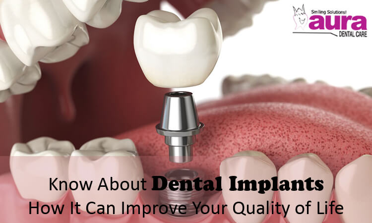 Know About Dental Implants How It Can Improve Your Quality of Life