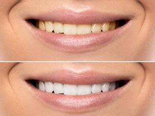 Teeth Whitening Treatment - Aura Dental