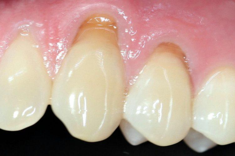 Abfraction aura dental